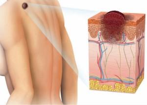 Maligni tumori kože danas su vrlo česti.
