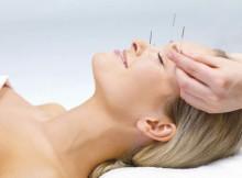 Akupunktura pomaže kod migrene
