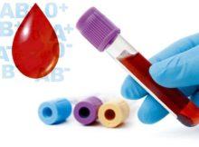Što vam krvna grupa govori o zdravlju