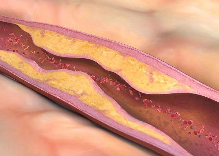 Lipoproteini prenose kolesterol krvotokom. Plak na stijenci krvne žile s vremenom raste i sužava žilu