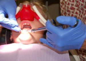 Bojite se zubara? Rješenje bi mogao biti rajski plin.