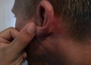 Seborejički dermatitis je upala kože na seborejičkim dijelovima tijela.