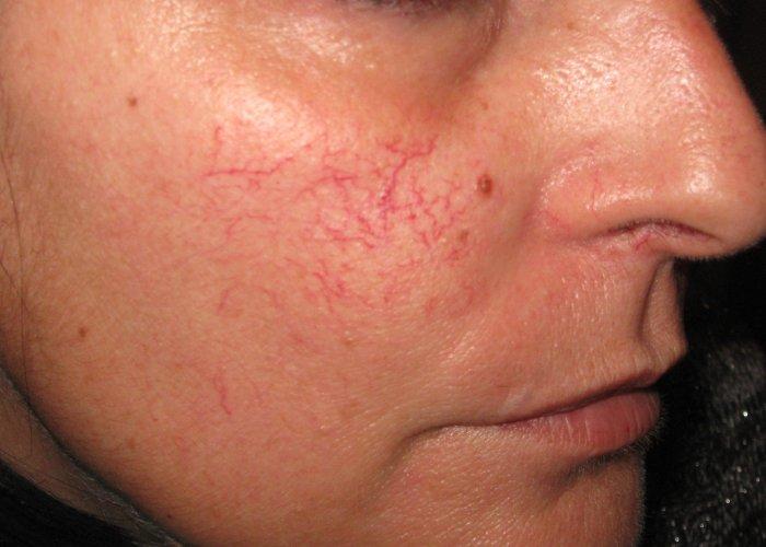 Izražene kapilare na licu