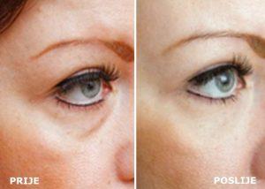 Masni jastučići ispod očiju