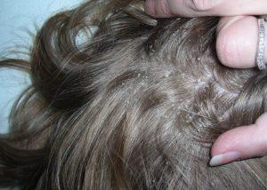 Perut može ukazivati na neke bolesti kože vlasišta.