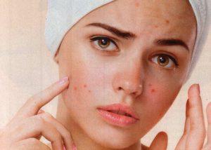 Akne su najčešća kožna bolest.
