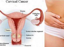 Rak grla maternice: Zloćudna bolest koju je moguće izbjeći