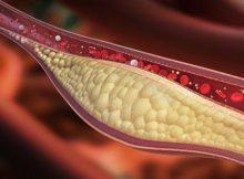 Povišena razina kolesterola - znakovi, simptomai, kada liječiti