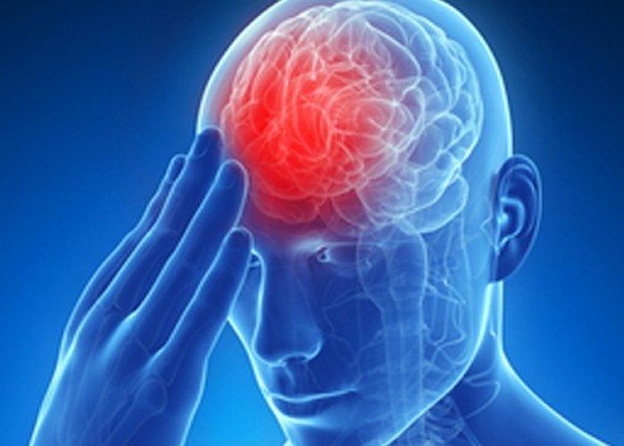 Kako prepoznati moždani udar