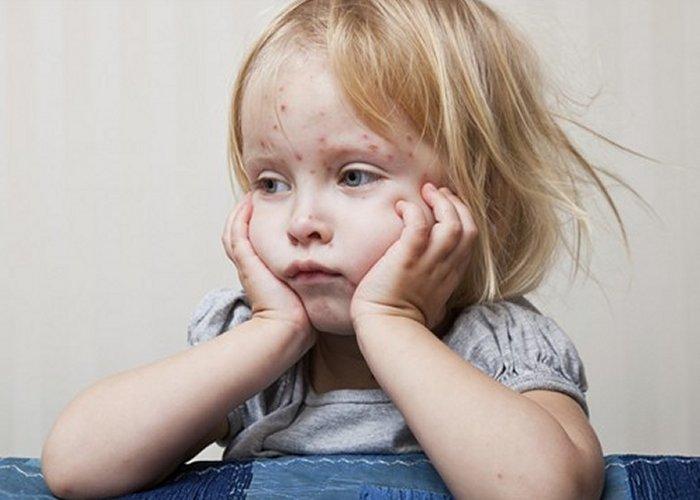 Vodene kozice (varičele) akutna su i zarazna bolest.