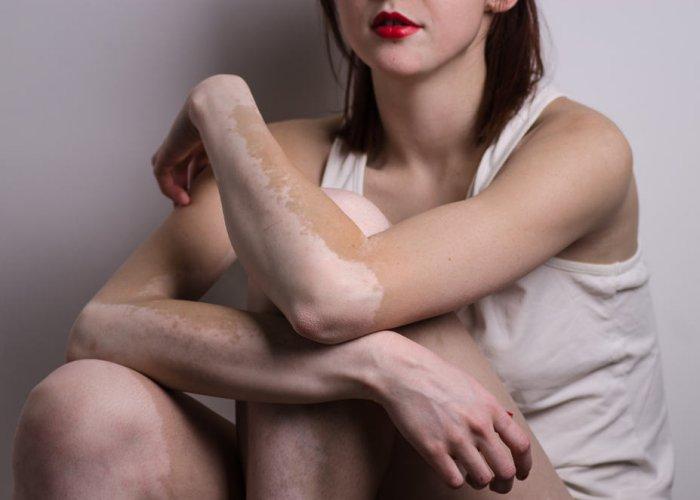 Najčešće bolesti kože - Vitilgo