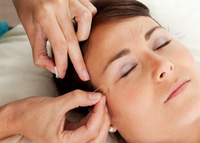 Akupunktura najdjelotvornije smiruje svaku tjelesnu bol, pa tako i glavobolju.