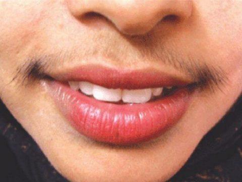 Uzroci pojačane dlakavosti kod žena